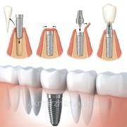 Установка корневидного винтового зубного импланта фото