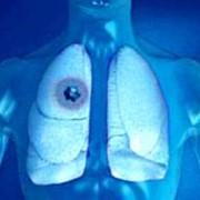 Диагностика рака легкого фото