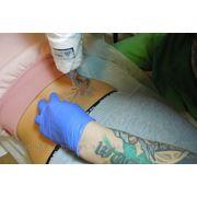 Удаление, выведение татуировки лазером фото