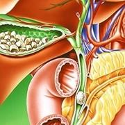 Лечение желчнокаменной болезни фото
