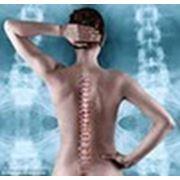 Мануальная терапия Бровары ,прием врача остеопата.Лечение опорно-двигательного аппарата. фото