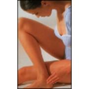 Лечение варикозного расширения вен фото