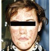 Лечение демодекса, демодекоза, проблемной кожи фото