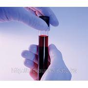 Обследование в биохимической лаборатории фото