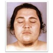 Консультация гинеколога-эндокринолога фото