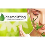 Plasmolifting фото
