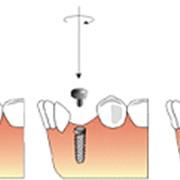 Вживление титанового винта в кость челюсти фото