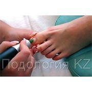 Коррекция вросшего ногтя, аппаратный педикюр, удаление стержневых мозолей, ортопедические стельки. фото