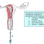 Искусственная инсеминация спермой донора фото