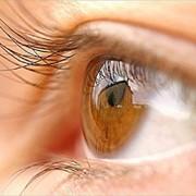Глаукома фото