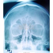 Рентгенография фото