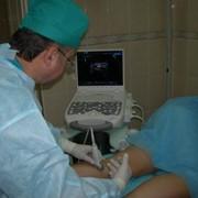 Варикозное расширение вен - лечение фото