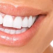 Стоматологические услуги в Уральске фото