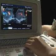 Исследования сосудов. Дуплексное сканирование и УЗДГ Исследования сосудов. Дуплексное сканирование и УЗДГ - применяется для выявления нарушений кровотока в сосудах. Исследование методом УЗДГ проводится на сосудах головы, шеи, глаз, нижних и верхних конеч фото