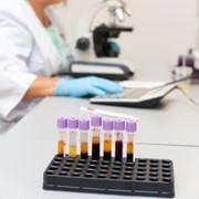 Углеводный обмен. Биохимический анализ крови фото