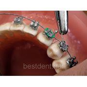 Несъемная ортодонтическая техника и ее сверхвозможности (1 день) фото