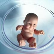 ЭКО (искусственное оплодотворение) фото