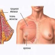 Маммопластика - пластика молочной железы фото