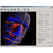 Установка систем распознавания образов фото