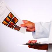 Лечение заболеваний мошонки и ее органов фото