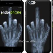 Чехол на iPhone 6 Рука через рентген 1007c-45 фото