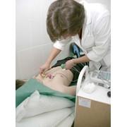 Ультразвуковое исследование (УЗИ) фото