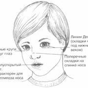 Определение антител к лекарственным аллергенам фото