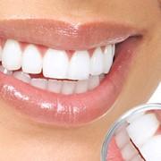 Выравнивание зубного ряда, Киев фото