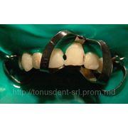 Restaurari dentare. фото