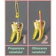 Terapie stomatologica фото