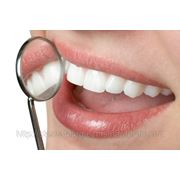 Restaurari dentare фото