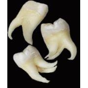 Paradontoza,gingivita… фото
