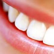Изменение размеров зубов фото