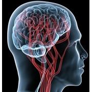 Магнитно-резонансная томография головного мозга с сосудами фото
