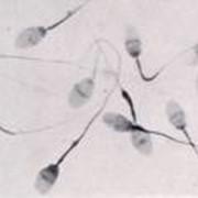 Спермограммы, Спермограммы в Алматы фото