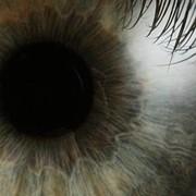 Офтальмология в Турции фото