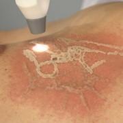 Лазерное удаление татуировок фото