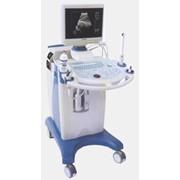Аппарат ультразвуковой диагностики Chison 600 A/E фото