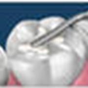 Удаление зубного камня фото