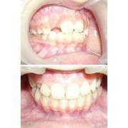 Лечение зубов животных фото