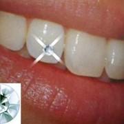 Скайсы на зубы, отбеливание зубов (Харьков) фото