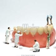 Удаление зубов Киев метро шулявская, Удаление зуба — стоматологическая операция по экстракции зуба из зубной альвеолы. фото