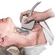 УЗИ щитовидной железы Херсон фото