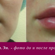 Контурная пластика губ (увеличение губ).Коррекция формы и увеличении губ в Киеве. фото