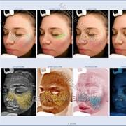 Компьютерная диагностика кожи лица фото
