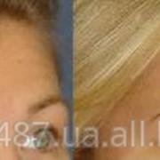 Омоложение шеи и нижней части лица фото