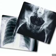 Купим ДОРОГО отработанный фиксаж, рентгенпленку! фото