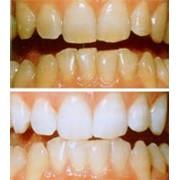Офисное или клиническое и домашнее отбеливание зубов фото