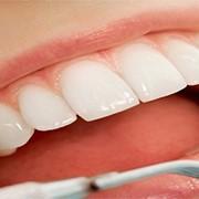 Зубная пломба фото