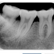 Прицельный рентген снимок зубов фото